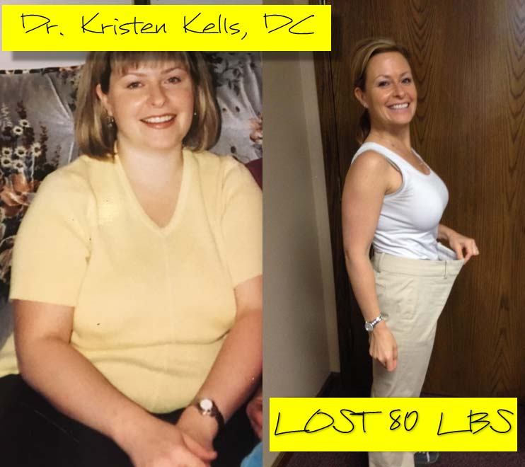 Dr Kristen Kells Before and After